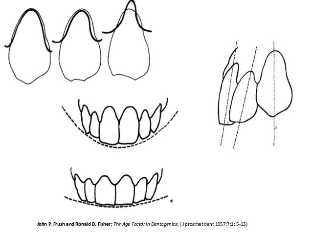 Anterior teeth selection