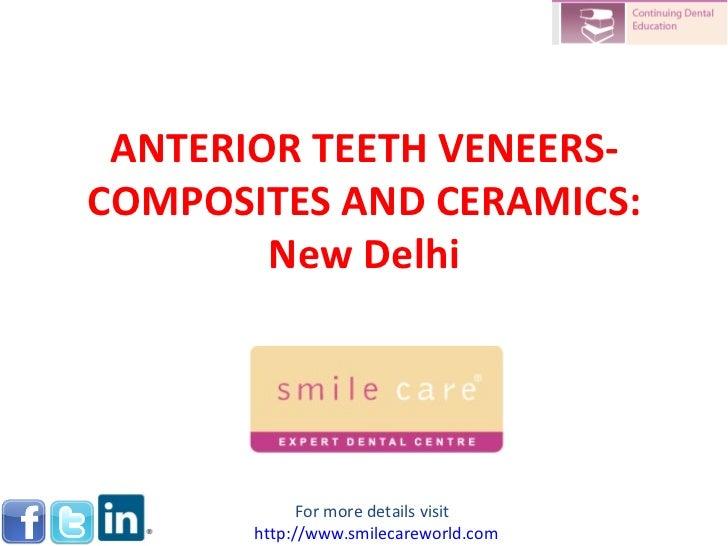 ANTERIOR TEETH VENEERS-COMPOSITES AND CERAMICS:        New Delhi             For more details visit       http://www.smile...