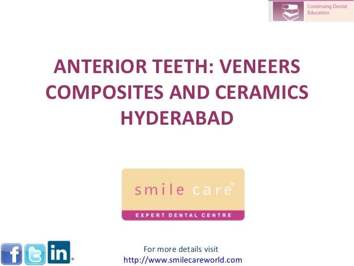 ANTERIOR TEETH: VENEERS COMPOSITES AND CERAMICS HYDERABAD For more details visit  http://www.smilecareworld.com