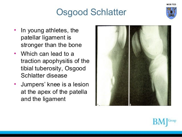 Anatomy Of Anterior Thigh