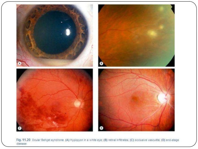 steroid induced glaucoma mechanism
