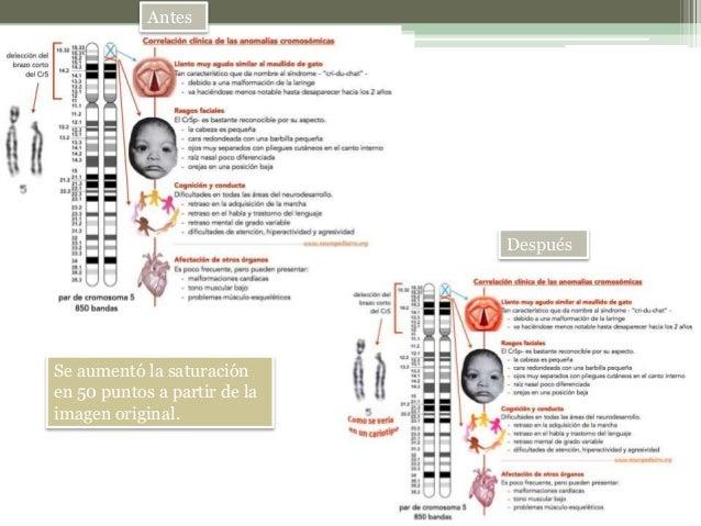 Antesydespuesimagenes Slide 2