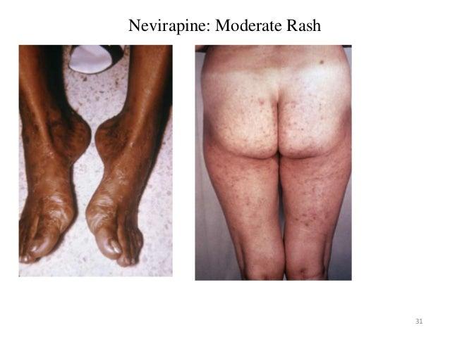 Nevirapine Skin Rash