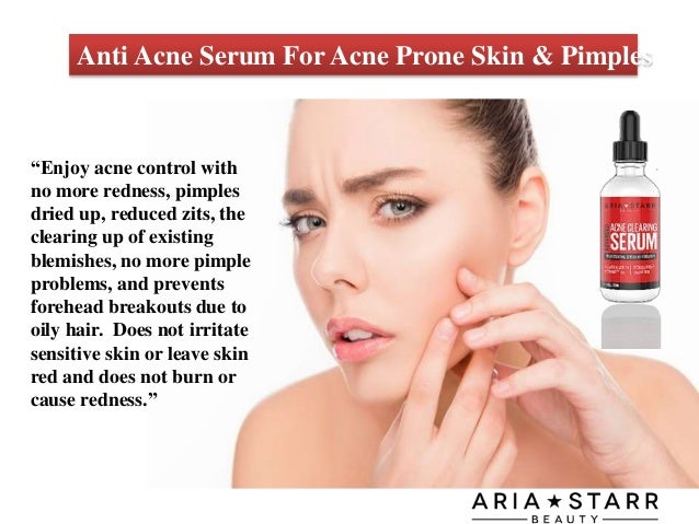 Anti Acne Serum For Acne Prone Skin