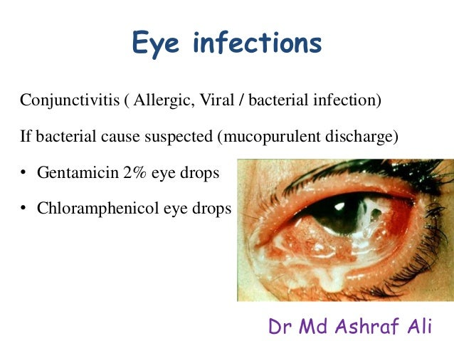 Antibiotic Eye Drops For Infection – Quotes of the Day