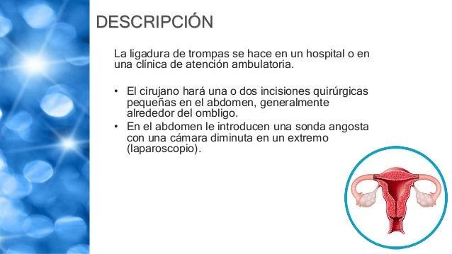 DESCRIPCIÓN La ligadura de trompas se hace en un hospital o en una clínica de atención ambulatoria. • El cirujano hará una...