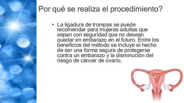 Por qué se realiza el procedimiento? • La ligadura de trompas se puede recomendar para mujeres adultas que sepan con segur...