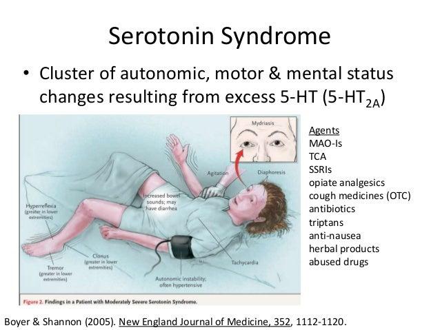 Ssri serotonin syndrome