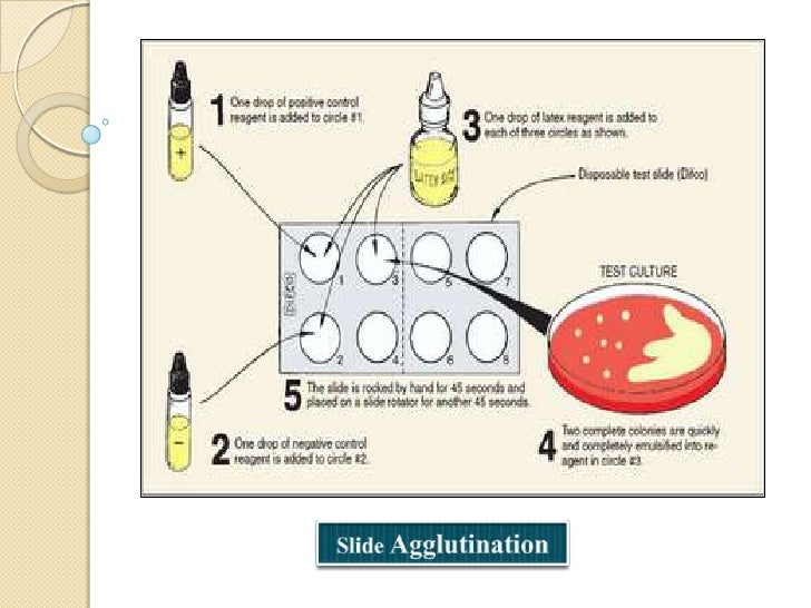 Tube agglutination: This is a standard method forquantitative estimation of Ab. The serum containingAb is diluted seriall...