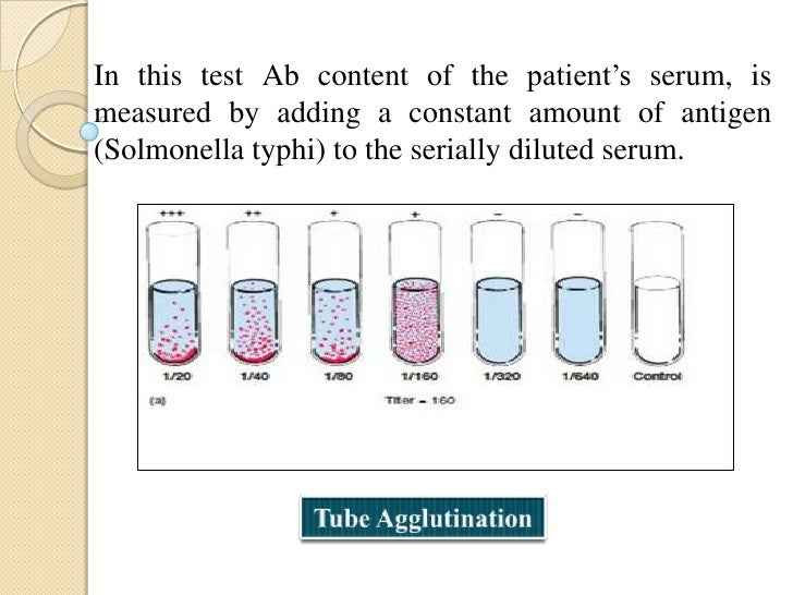 Agglutination Inhibition:Provides a highly sensitive assay for small quantitiesof an Antigen.Example: First home pregnancy...