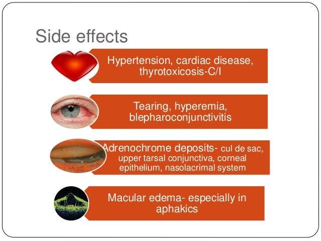 Side effects Hypertension, cardiac disease, thyrotoxicosis-C/I Tearing, hyperemia, blepharoconjunctivitis Adrenochrome dep...