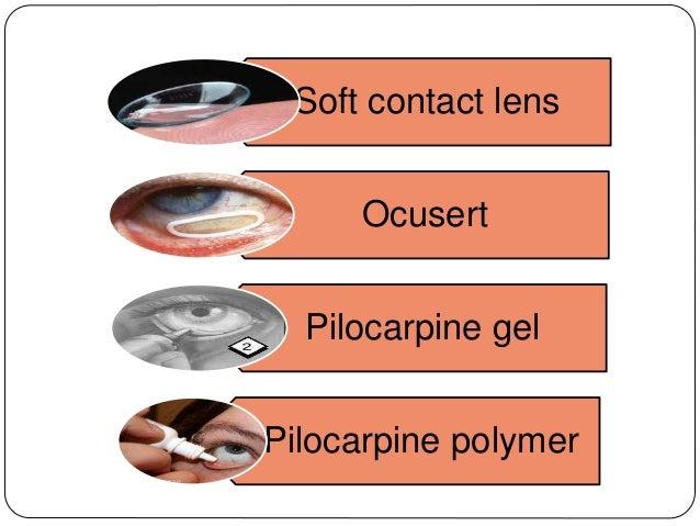 Soft contact lens Ocusert Pilocarpine gel Pilocarpine polymer