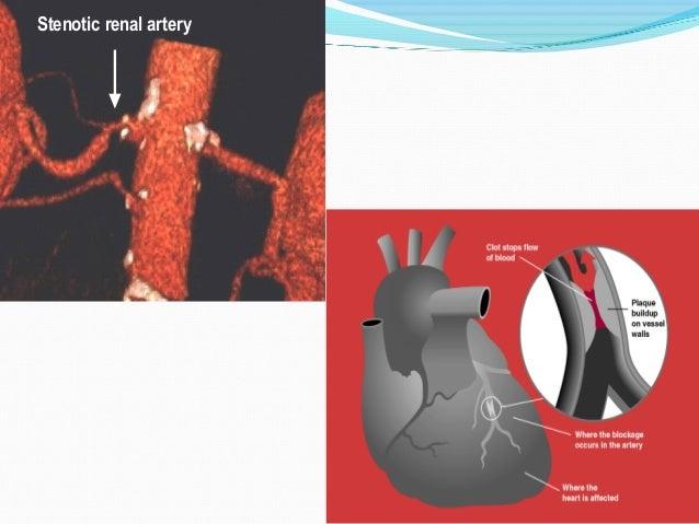 Stenotic renal arteryStenotic renal artery
