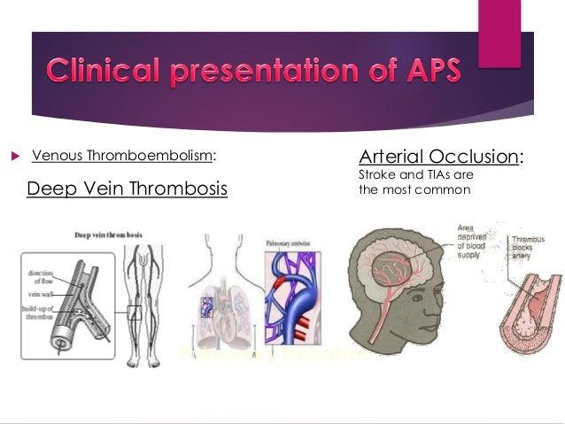 Antiphospholipid Syndrom Erfahrungen