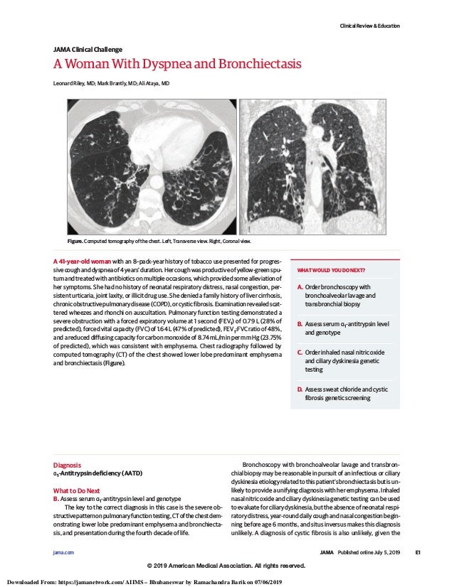 A Woman With Dyspnea and Bronchiectasis Leonard Riley, MD; Mark Brantly, MD; Ali Ataya, MD A 41-year-old woman with an 8–p...