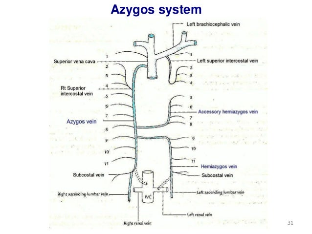 Chest Xray  Anatomical variants  Azygos fissure