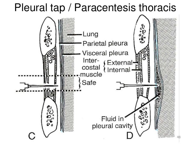 Ant thoracic wall and intercostal space