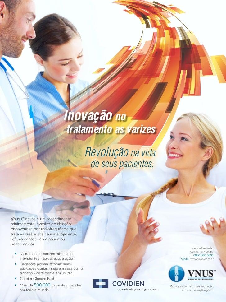 Inovação no                                 tratamento as varizes                                               Revolução ...