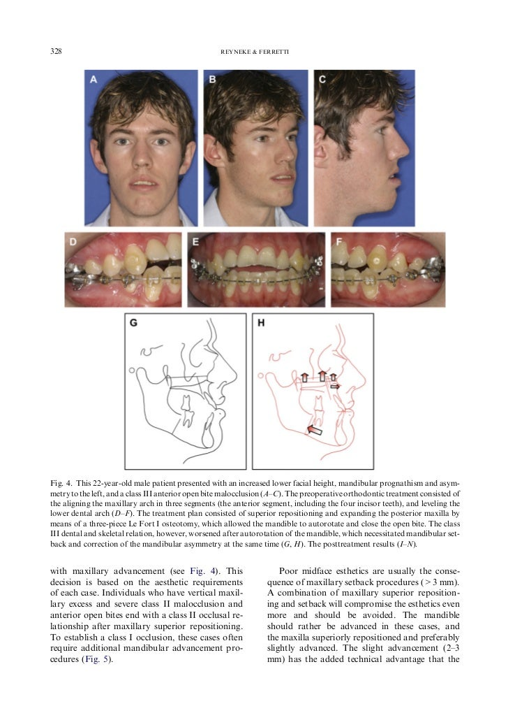 mandibular prognathism by bsso study Aim of the study the aim of the study was to evaluate the  university, who were indicated for bsso for correction of mandibular prognathism or retrognathism,.