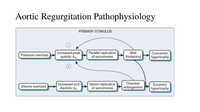 Anesthesia Management in Aortic Regurgitation