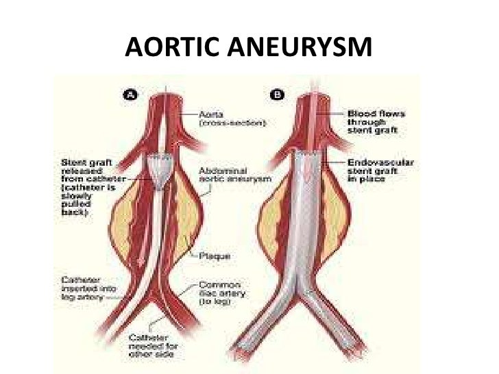 aortic aneurys mppt, Human Body