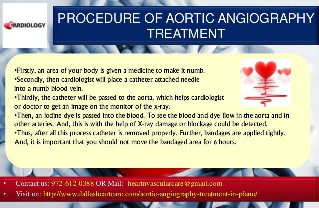 Aortic angiography treatment in plano Slide 3