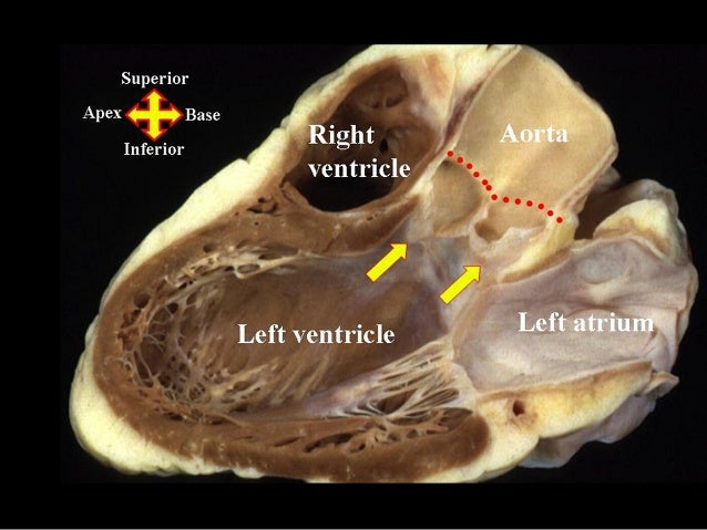 Aortic Root Surgical Anatomy