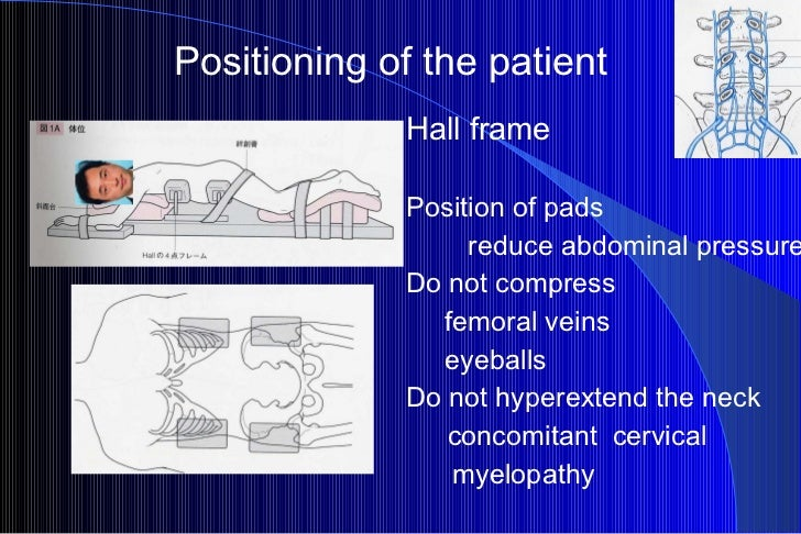 Positioning of the patient Hall frame Position of pads    reduce abdominal pressure Do not compress femoral veins eyeballs...