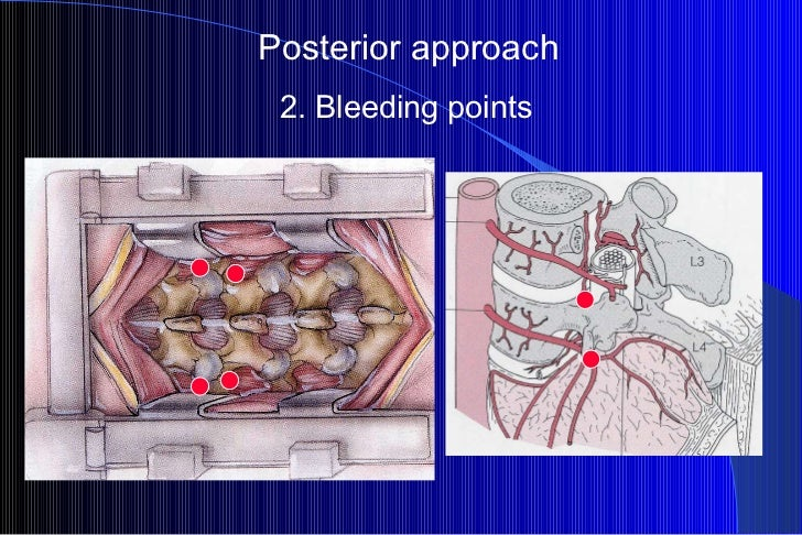 Posterior approach 2. Bleeding points
