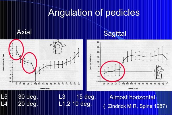 Axial Sagittal ( Zindrick M R, Spine 1987) Angulation of pedicles L5    30 deg.     L3    15 deg. L4    20 deg.     L1,2 1...