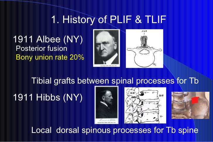 1. History of PLIF & TLIF Tibial grafts between spinal processes for Tb  1911 Hibbs (NY) Local dorsal spinous processes f...