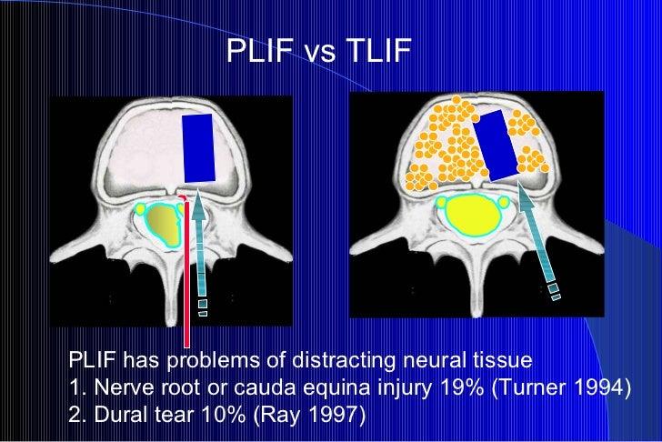 PLIF vs TLIF PLIF has problems of distracting neural tissue 1. Nerve root or cauda equina injury 19% (Turner 1994) 2. Dura...
