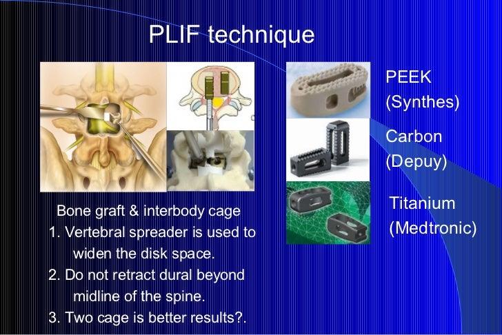 PLIF technique PEEK  (Synthes) Carbon  (Depuy) Titanium (Medtronic) Bone graft & interbody cage 1. Vertebral spreader is u...