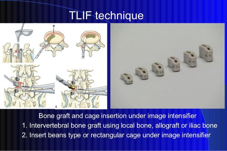 TLIF technique Bone graft and cage insertion under image intensifier 1. Intervertebral bone graft using local bone, allogr...
