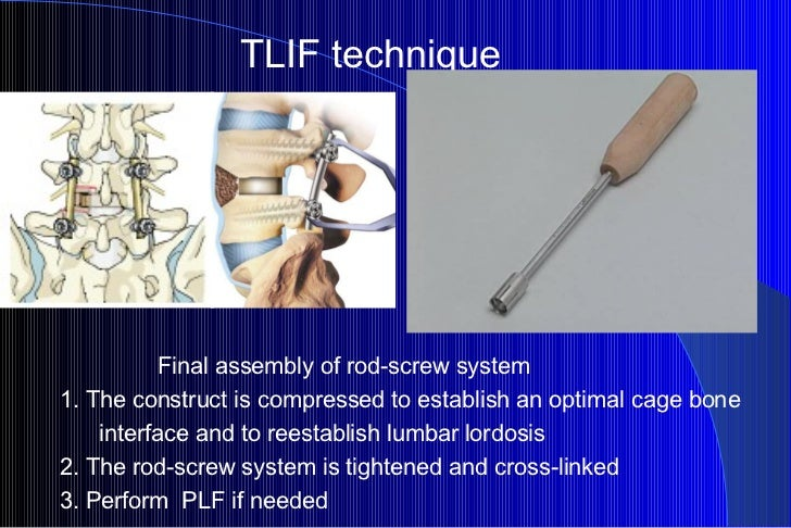 TLIF technique Final assembly of rod-screw system 1. The construct is compressed to establish an optimal cage bone interfa...