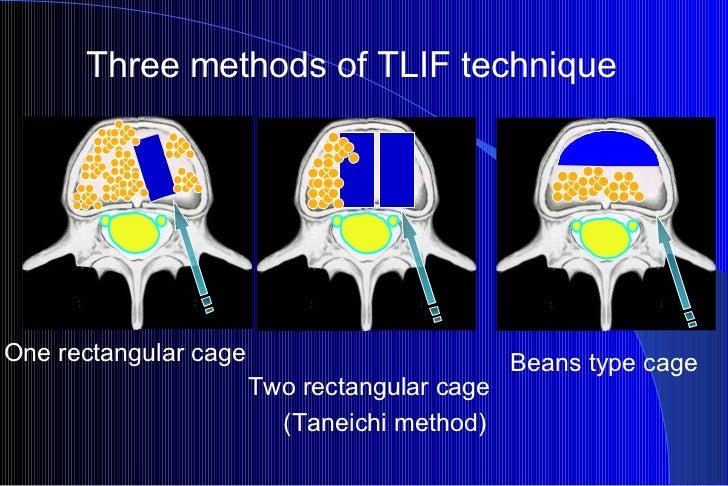 Three methods of TLIF technique One rectangular cage Two rectangular cage (Taneichi method) Beans type cage