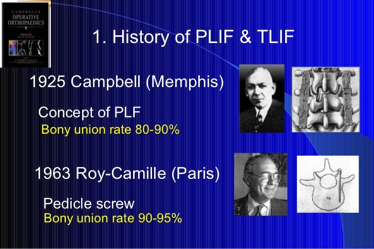 1. History of PLIF & TLIF 1925 Campbell (Memphis) Concept of PLF 1963 Roy-Camille (Paris) Pedicle screw Bony union rate 80...