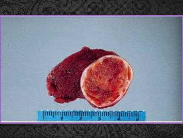 adenoma follicular tiroideo pdf