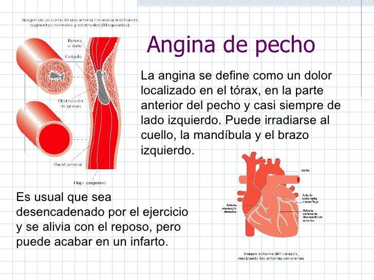 La angina de pecho, dolor previo al infarto