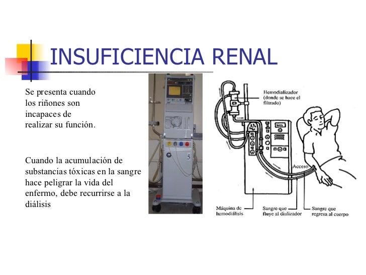 A la hernia sheynogo del departamento de la columna vertebral no es posible