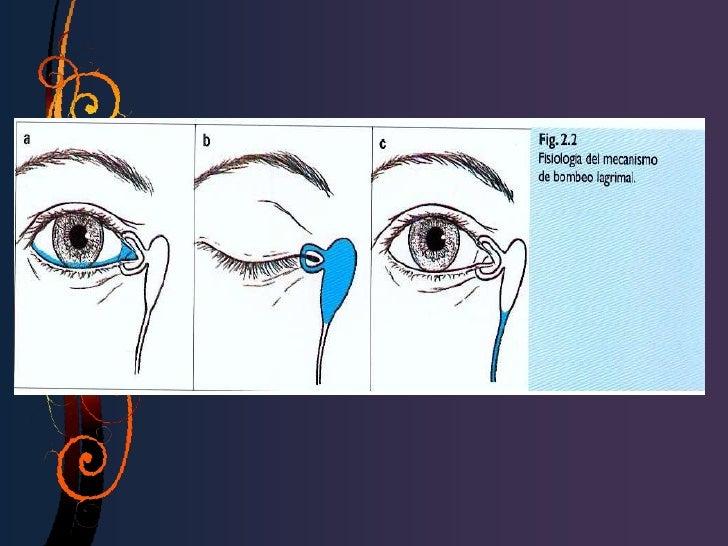 Prueba secundaria• Localización de la obstrucción parcial.• Positiva. Suero fisiológico teñido con  fluoresceína en nariz....