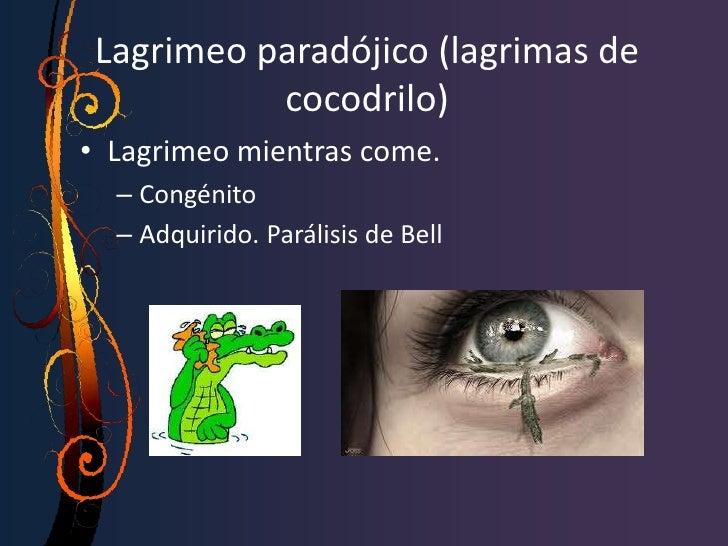 OBSTRUCCION CANALICULAR • CAUSAS: a) FIBROSIS IDIOPATICA. b) DACRIOCISTITIS CRONICA (por la formación    de una membrana e...