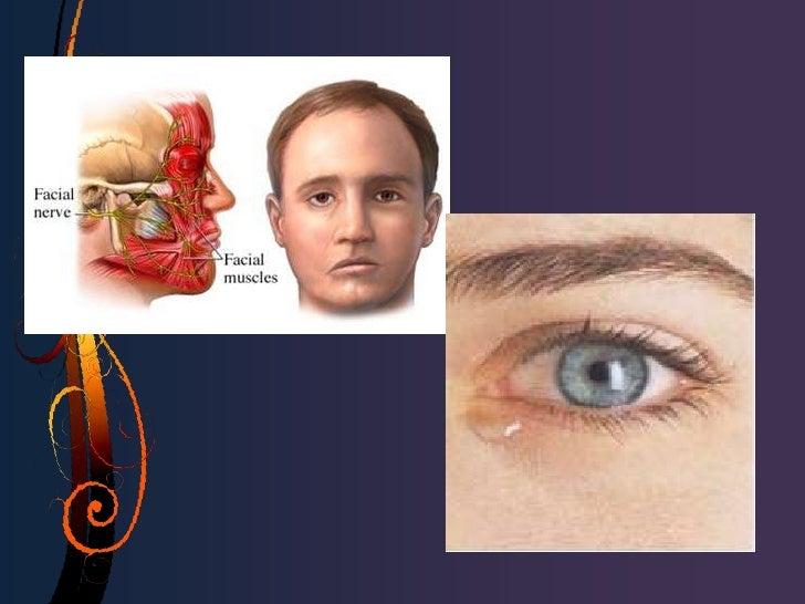 • Obstrucción parcial: intubación del sistema canalicular  por 3-6 meses.• Obstrucción total canalicular individual:a) De ...