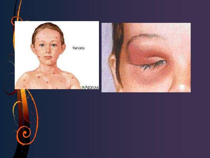 OBSTRUCCION CONGENITA DEL CONDUCTO NASOLAGRIMAL• La epifora afecta aproximadamente al 20% de los  recién nacidos, aunque s...