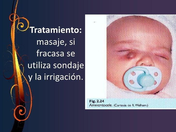 Sx. de Sjogren• Enf. autoinmune sistémica que afecta  glándulas exocrinas, conduciendo a la  aparición de sequedad.• Proce...