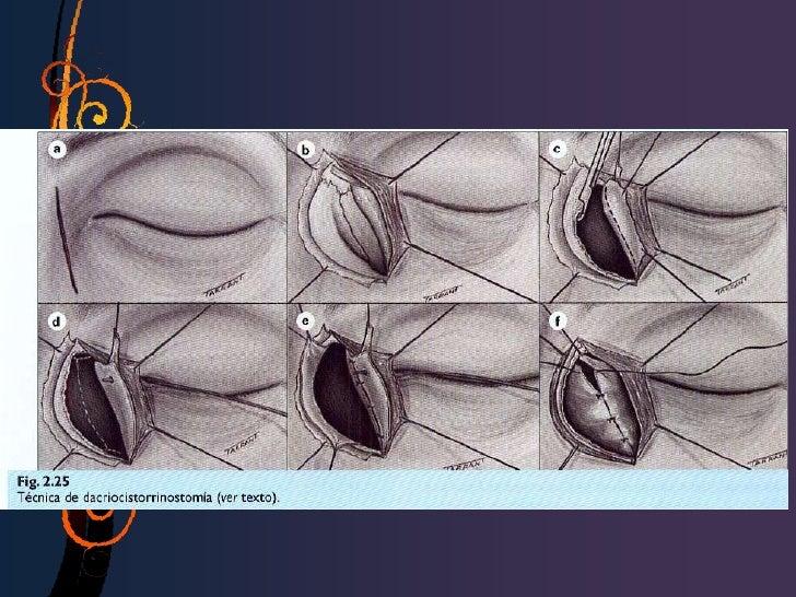 QCS no Sjogren1. Primaria: relacionada con la    edad (mas frecuente)2. Destrucción del tejido lagrimal3. Ausencia de glán...