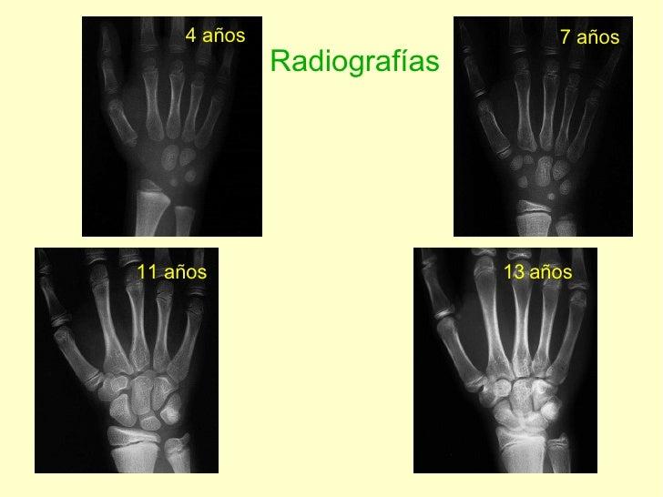 4 años 7 años 11 años 13   años Radiografías