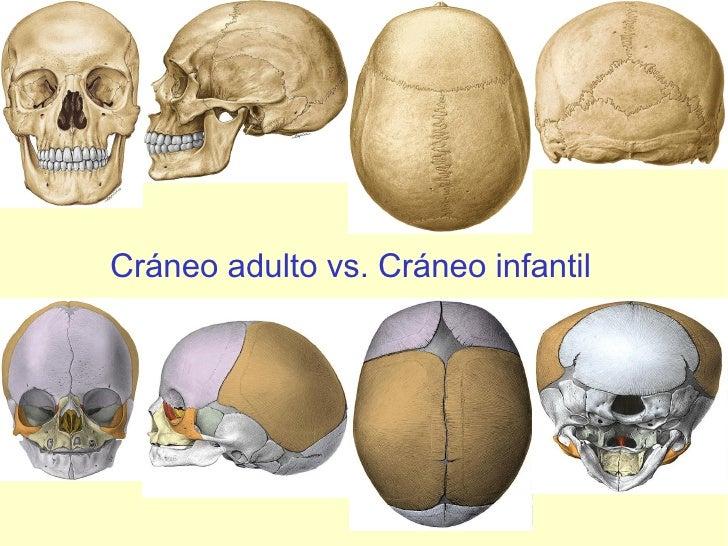 Cráneo adulto vs. Cráneo infantil