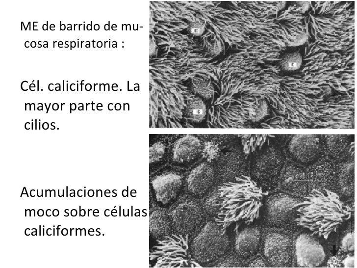 <ul><li>ME de barrido de mu-cosa respiratoria : </li></ul><ul><li>Cél. caliciforme. La mayor parte con cilios.  </li></ul>...