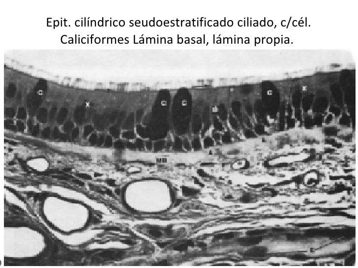 Epit. cilíndrico seudoestratificado ciliado, c/cél. Caliciformes Lámina basal, lámina propia.